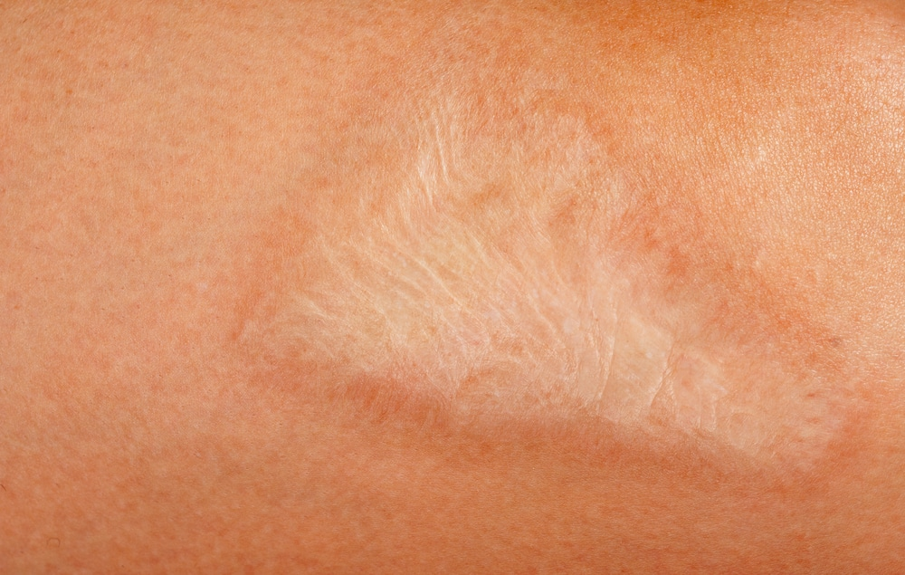 burn scars treatment