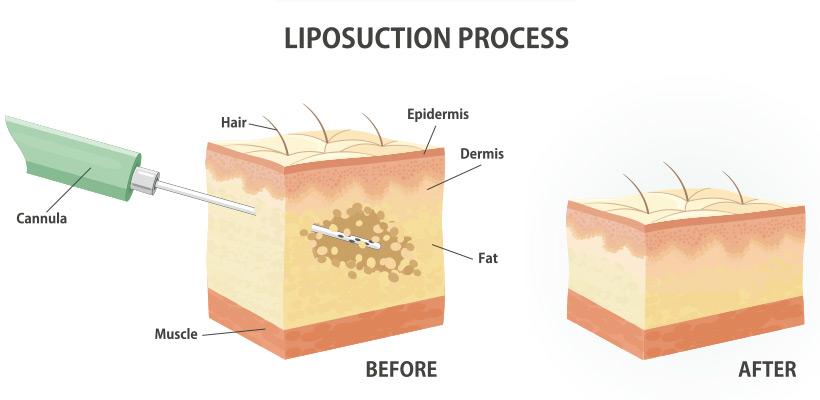 submental liposuction technique