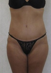 tummy tuck mummy makeover after