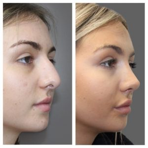 Female rhinoplasty before and after side view