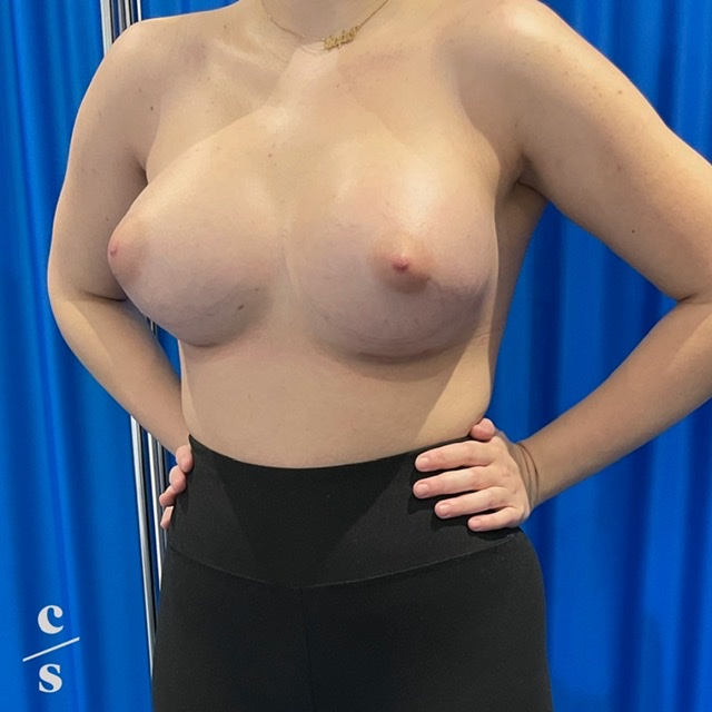 breast asymmetry correction with implants after