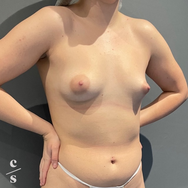 breast asymmetry correction before