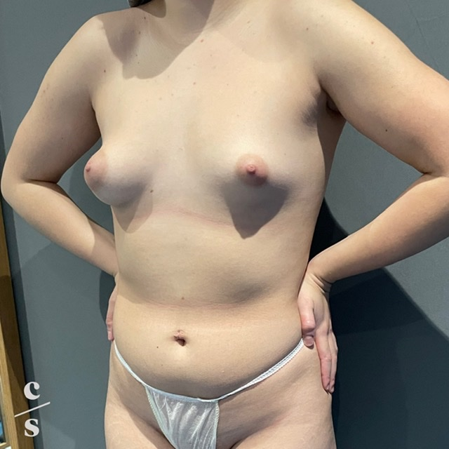 breast asymmetry correction with implants before